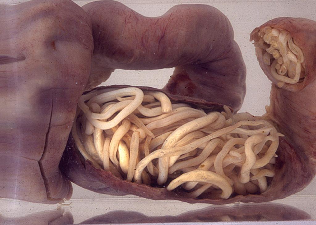 علاج الديدان عند الاطفال بالثوم
