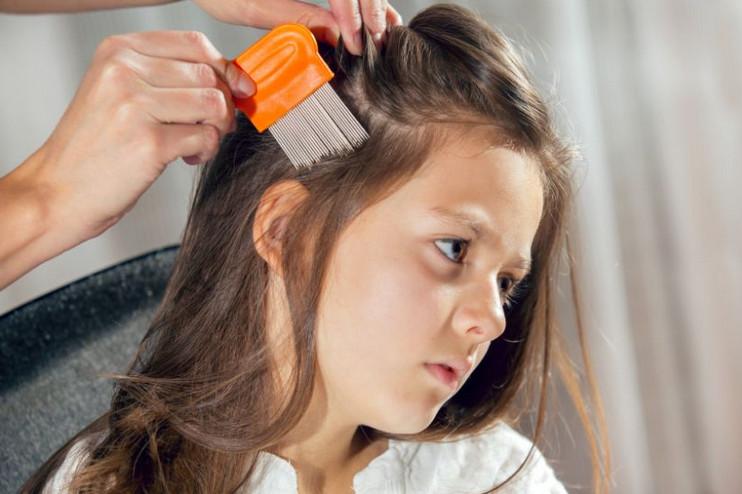 نقاء إجماع استدعى طريقة تنظيف الشعر من القمل بالتايد Merahmaron Com