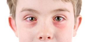 احمرار العين عند الاطفال