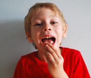 اعراض نقص الكالسيوم عند الاطفال